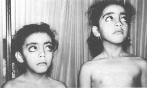 фото больных девочек