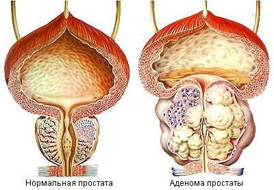 аденома предстательной железы
