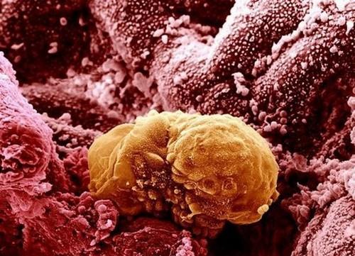 фото прикрепления эмбриона